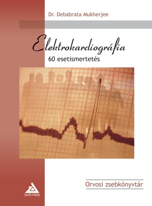ELEKTROKARDIOGRÁFIA - 60 ESETISMERTETÉS